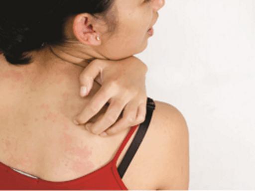 秘傳-3種消炎食療